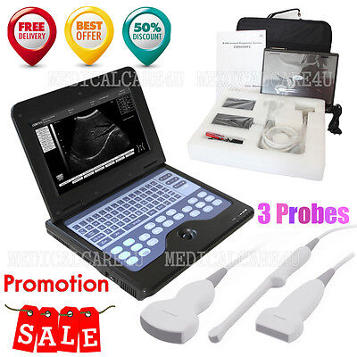 Laptop Machineultrasound Scanner Convexlineartransvaginal 3 Probesus Seller