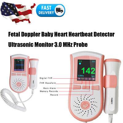 Fetal Doppler Fetus Heartbeat Ultrasonic Monitor Lcd Digital Display3mhz Probe