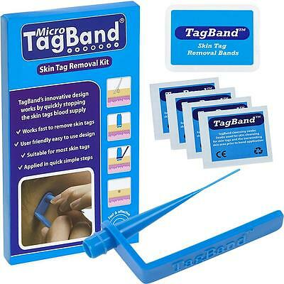 Micro TagBand Skin Tag Remover Device Kit for Fast & Effective Skintag Treatment