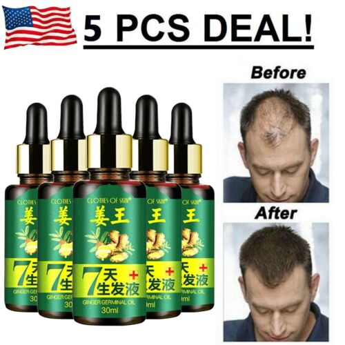ReGrow 7 Day Ginger Germinal Hair Growth Serum Hairdressing Oil Loss treatments Hair Care & Styling