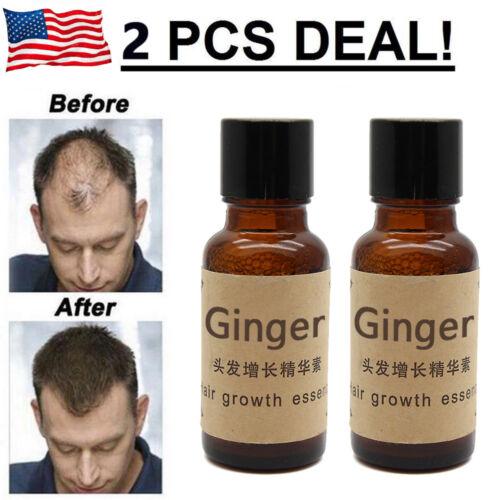 HAIR BEARD GROWTH KIT Ginger Oil Hair Beard Supplement Vitamin Beard Oil New Hair Care & Styling