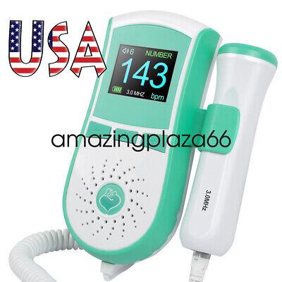 Prenatal Sound Lcd Display Fetal Doppler 3mhz Prenatal Monitor Gel