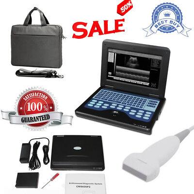 Portable Ultrasound Scanner Machine Diagnostic B-ultrasound 7.5 Linear Probe Fda
