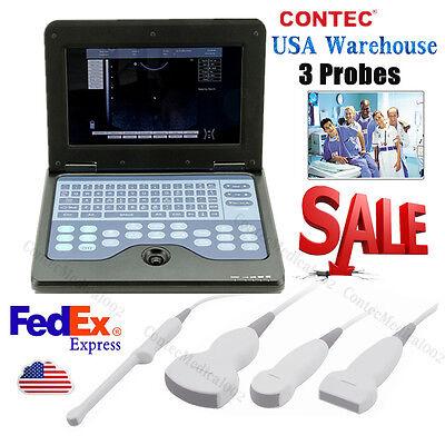 Portable Laptop Machine Digital Ultrasound Scanner3 Probeconvexlinearcardiac