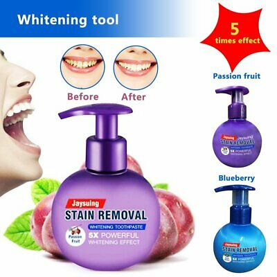 UK Natural Intensive Stain Remover Whitening Toothpaste Fight Bleeding Fresh