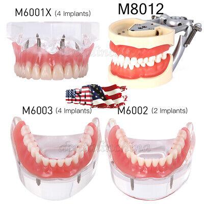 Dental Implant Teeth Model Demo Overdenture Restoration Implants Upper Lower