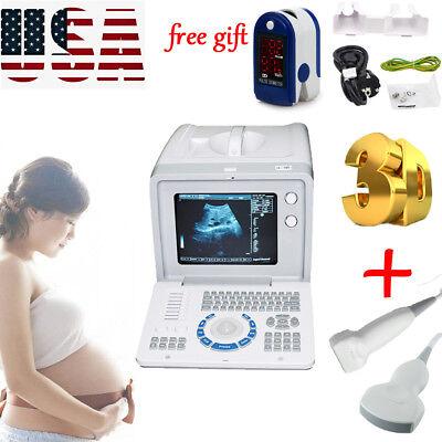 Portable Ultrasound Scanner Machine3dlinear Probe Convex Probegift Usa