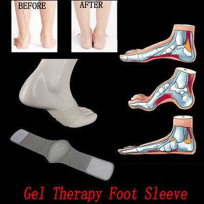 Flat Feet Plantar Fasciitis Arch Cushion & Support With Gel Therapy Foot Sleeve