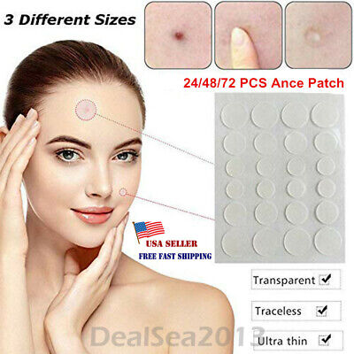Skin Tag & Acne Patch - NEW Hydrocolloid Acne and Skin Tag Remover Patches US