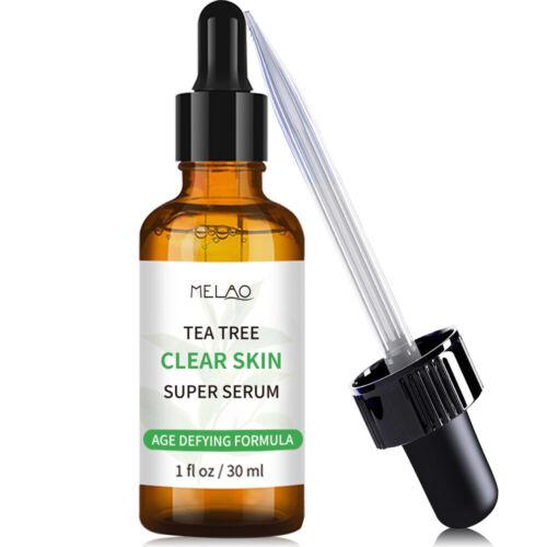 Tea tree Relief Serum Face Serum Oil-Control Smooth Scars Acne Marks Moisturizer Acne & Blemish Treatments