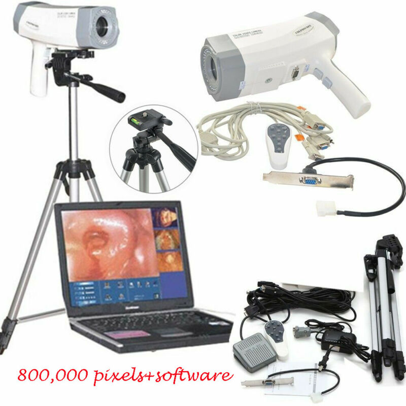 Color Digital Electronic Colposcope Vaginoscopy SONY 800,000 pixels Camera DSP