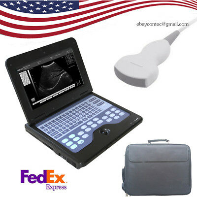 Portable Laptop Machine B-ultrasound Scanner3.5 Convex Probepregnancyfetalus