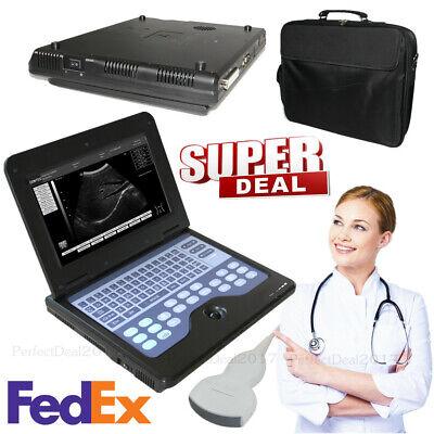Laptop Ultrasound Machine Notebook Digital Ultrasound Scanner 3.5 Convex Probe