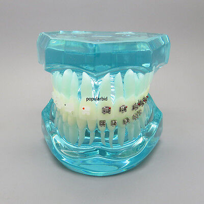 Best Dental Orthodontics Communication Model With 4 Types of (Best Model Of Communication)