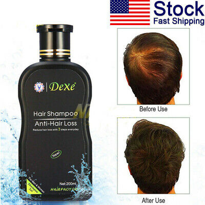 DEXE Anti-Hair Loss Shampoo Chinese Herbal Hair Regrowth For Men&Women 200ML (Dex Organizer)