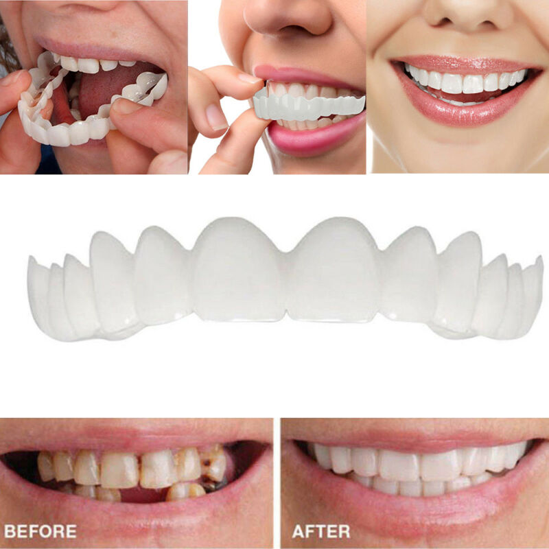 Smile Teeth Cosmetic Veneers Dentistry Snap On Comfort Covers Fix One Size Safe
