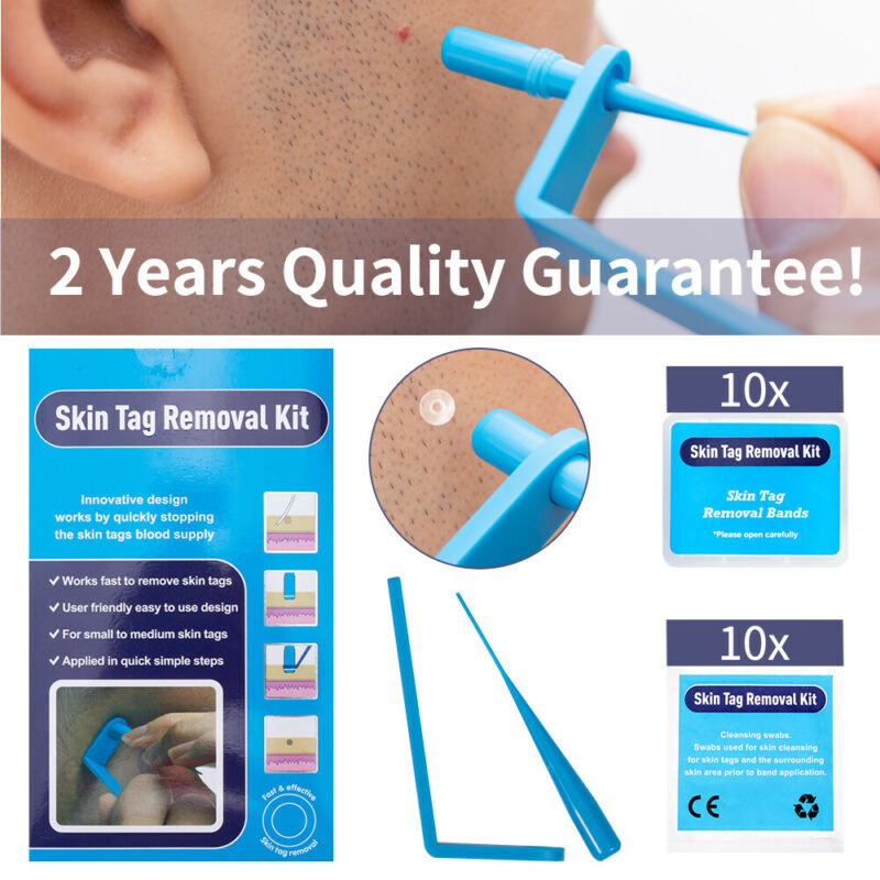 Micro TagBand Skin Tag Remover Device Kit For Small To Medium Skin Tags Removal