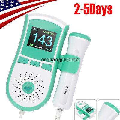Portable Color Lcd Pocket Fetal Doppler Prenatal Heart Baby Heart Monitor 3mhz