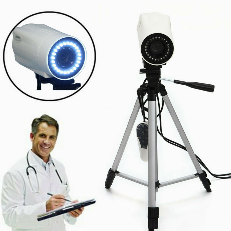 800,000 Pixels Digital Video Electronic Colposcope SONY Camera Software + Tripod