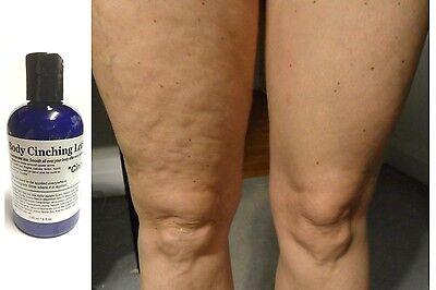 ModelSupplies Body Cinching Lotion DMAE ALA Ester-C HA Cinch Skin Tightening 4oz