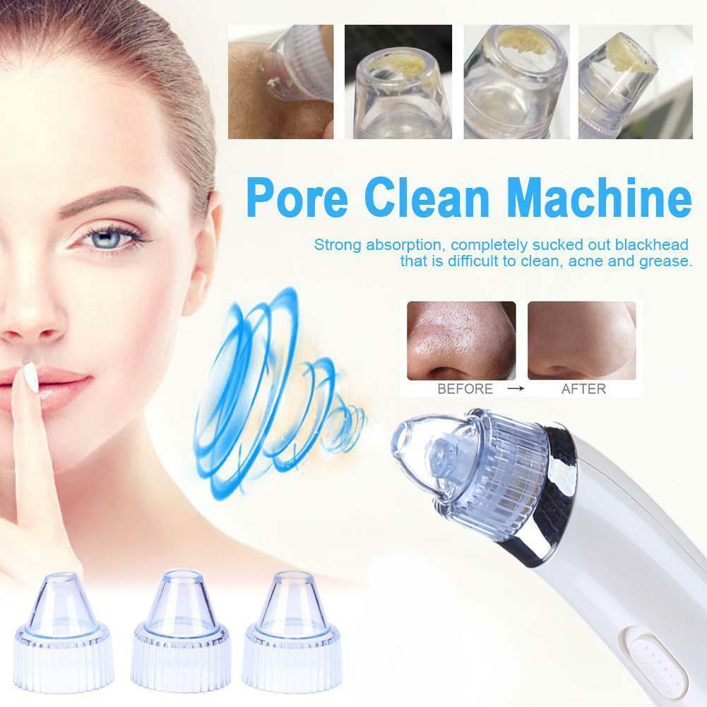 Face Pore Cleaner Blackhead Remover Vacuum Suction Facial Cl