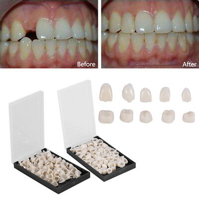 1 Box 50 Pcs Oral Dental Temporary Crown Teeth Crown Resin Tooth Utility