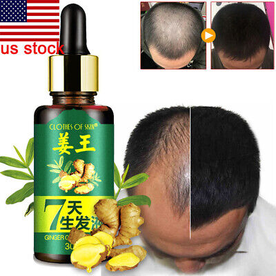US Men 30ml 7 Days Hair Growth Care Ginger Essential Oil for