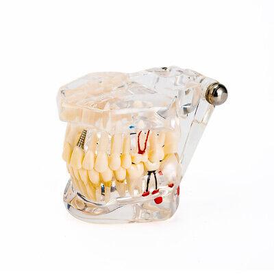 Easyinsmile Study Teaching Implant Disease Dental Teeth Model Restoration Bridge