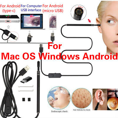 USB Digital Led Endoscope Otoscope Ear Camera Scope Earwax Removal for MAC OS PC