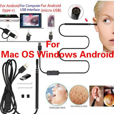 Usb Digital Led Endoscope Otoscope Ear Camera Scope Earwax Removal For Mac Os Pc