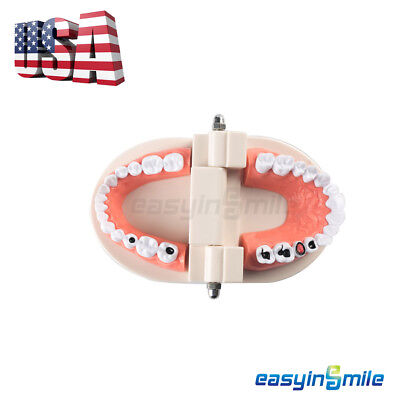 1x Dental Caries Tooth Study Model Typodont Demonstration Adult Size Easyinsmile