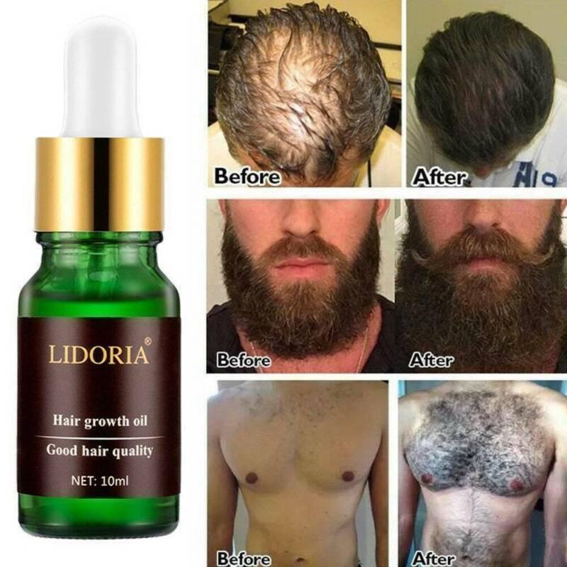 Natural Beard Hair Fast Growth Essential Oil Organic Nourish