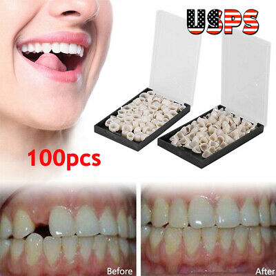 100 Pcs Dental Oral Temporary Teeth Crown Cap Tooth Synthetic Resin Usps Ship