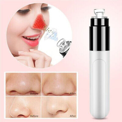Mini Electric Facial Pore Dirt Blackhead Cleaning Skin Cleaner Suck Up Tool Mgic Acne & Blemish Treatments