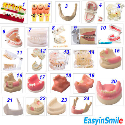 Easyinsmile Dental Tooth Model As Picture Shows Dental Studying Teaching Use