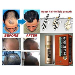 Natural Herbs Hair Growth Anti Hair Loss Treatment Fast Growth Regrowth Essence