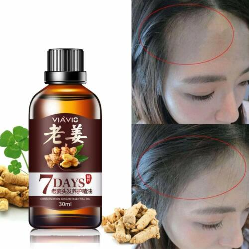 Hair Growth Dense Fast Regrowth Ginger Serum Oil Anti Loss Treatment Essence Hair Care & Styling