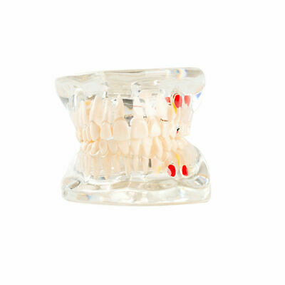 Easyinsmile Dental Study Teeth Model Pathological Disease Tooth Analysis Model