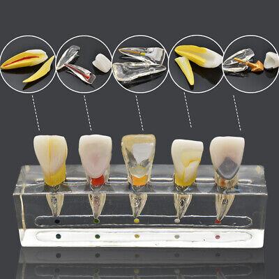 Endodontic Pathology Study Model Demonstration Treatment Anterior Teeth Dental