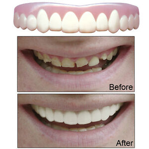 NEW Natural Imako Cosmetic Custom Teeth (Large) - Smile With Confidence Again