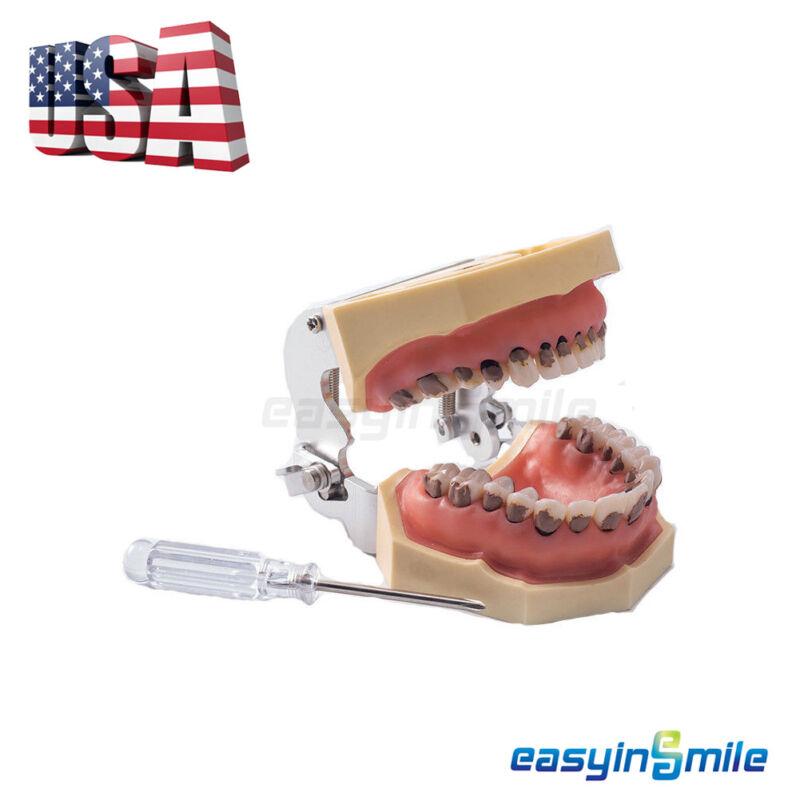 [USA]Dental Teeth typodont Periodontal Study Teeth Periodontitis Soft Gingivitis