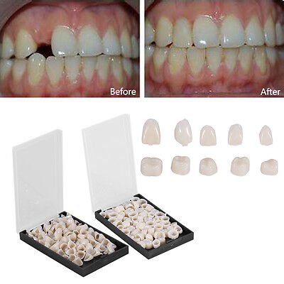 50pcs Temporary Crowns Posteriors Anterior Molar Resin Tooth Teeth Caps Dental