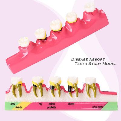 Dental Lab Study Teach Model Periodontal Disease Assort Teeth Dentoform Typodont