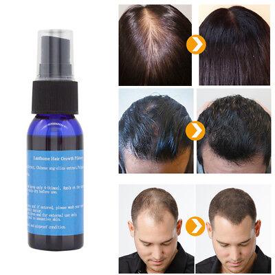 Fast Hair Growth Dense Regrowth Essence Treatment Women Men Anti Loss Flowery