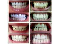 Smile with confidence - Whitening Toothpaste