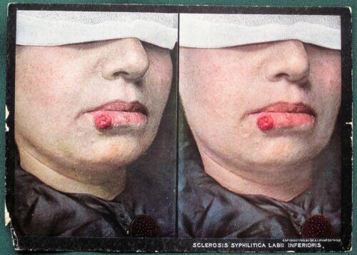 SYPHILIS Lip Sores - orig 1910 Skin Disease Medical Stereoview Photo
