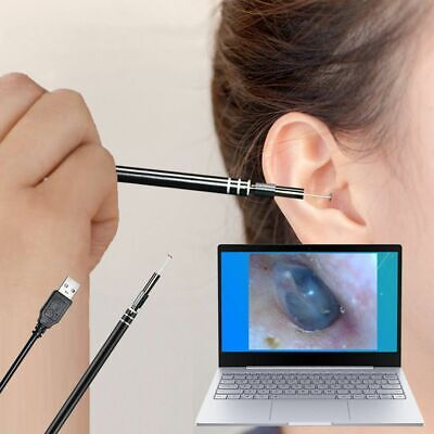 Usb Led Endoscope Otoscope Ear 5.5mm Camera Scope Earwax Removal Cleaning Tool