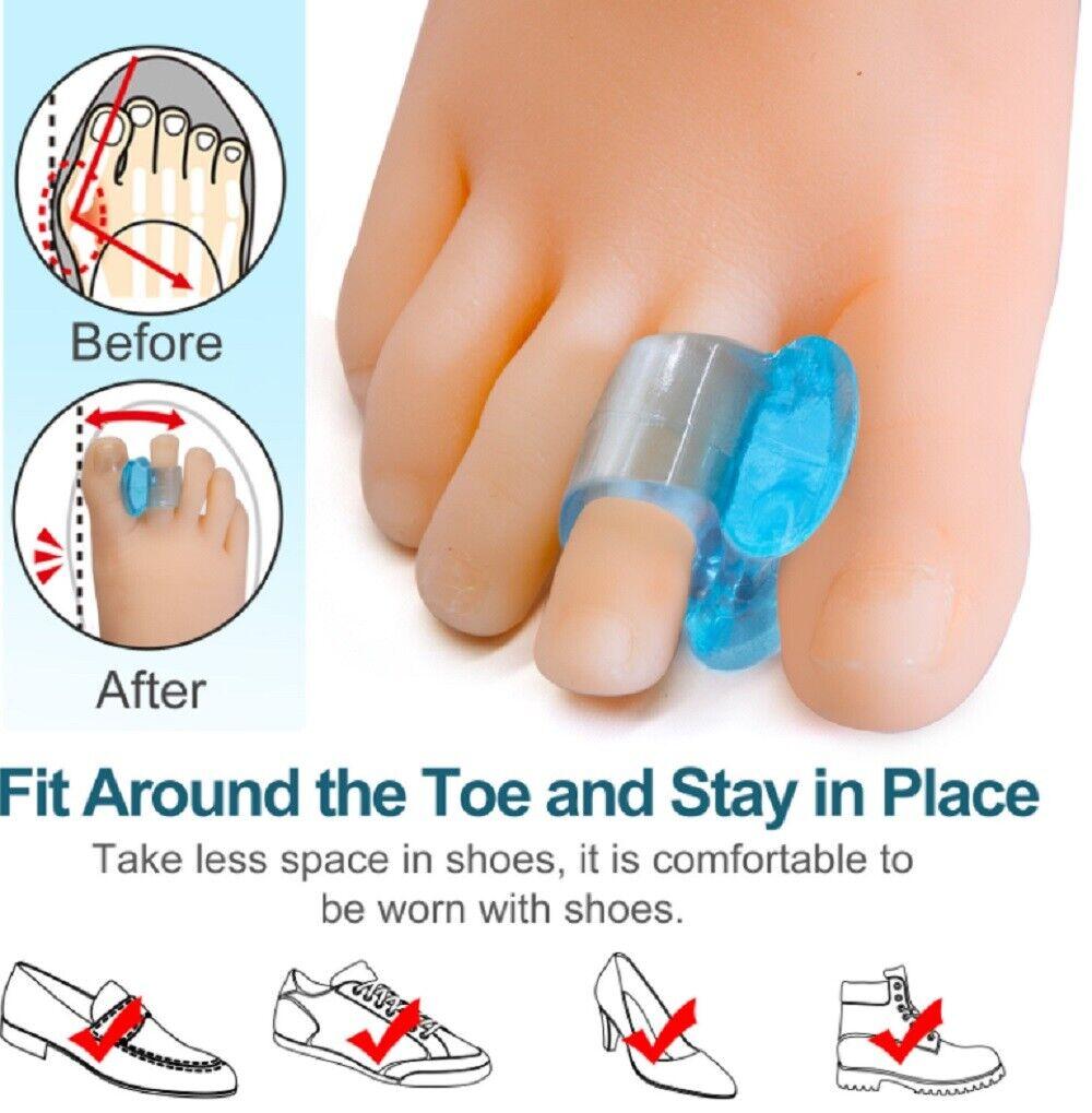 1 Pair Silicone Gel Bunion Toe Corrector Orthotics Straightener Separator Pain Foot Creams & Treatments