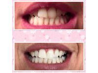 Two PROFESSIONAL NATURAWHITE AURA LASER LIGHTS for Teeth Whitening. Teeth whitening kit