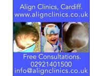 Plagiocephaly, Brachycephaly, Flat Head Syndrome Helmet Treatment for Babies with a Mishapen Head
